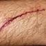 A wound