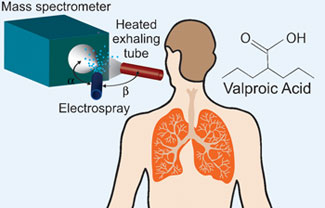 Valproic Acid Level Monitoring