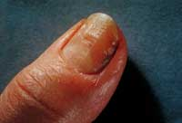 Fingernail infection