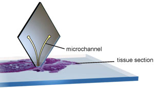 Diamond-shaped probe used to analyse tissue samples